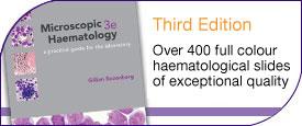 275x115abouthaematology